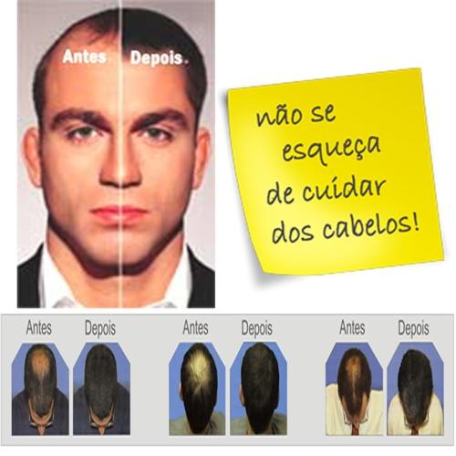 HairSink Fresh Kit 1 Shampoo 240ml + 1 Tônico Capilar 140ml
