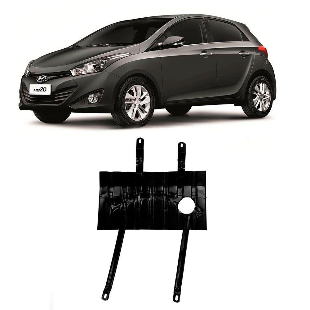 Protetor Carter Hyundai HB20 1.0 1.6 2013 em diante  - AutoParts Online