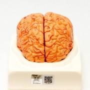 Cérebro com artérias em 2 partes