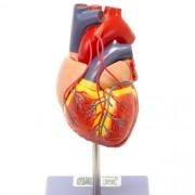 Coração com revascularização bypass - Loja Civiam