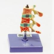 Osteoporose avançada