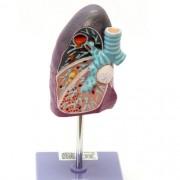 Pulmão patológico