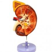Rim com glândula adrenal 3x o tamanho