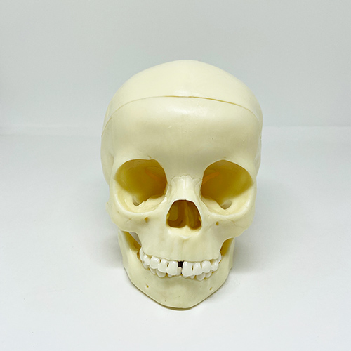 Crânio de criança de 5 anos com dentes individuais moldados, em 3 partes