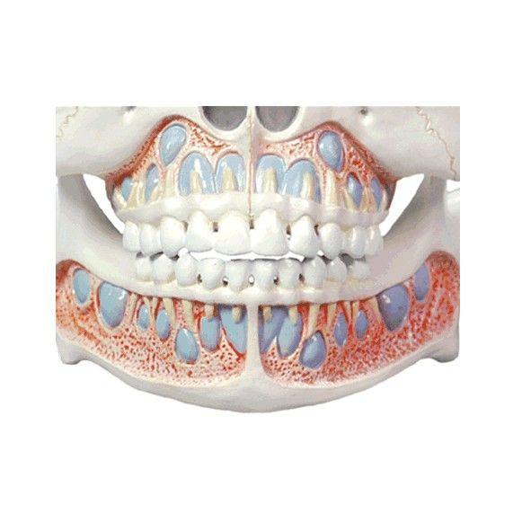 Modelo Anatômico de Dentição Infantil
