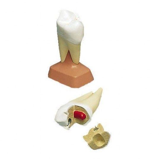 Modelo Anatômico de Molar Superior com Raiz Dupla e Cáries em 2 Partes