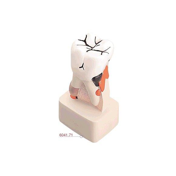 Modelo Anatômico Dental Patológico