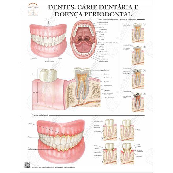 Poster Dentes Cárie dentária e doença periodontal