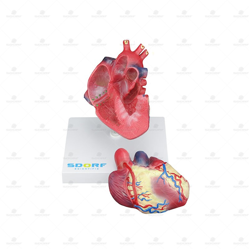 MODELO PATOLÓGICO DO CORAÇÃO COM HIPERTROFIA EM 2 PARTES REF SD-5214