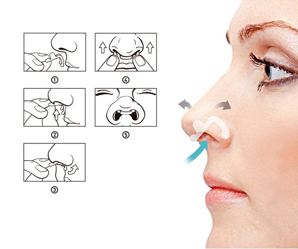Dilatador Nasal Interno Flux Air Embalagem Teste com 2 Unidades