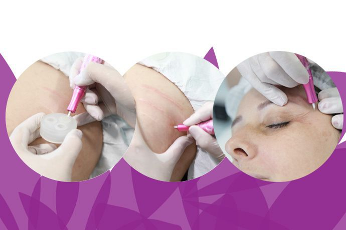 Dermopunturador Beauty Mag Cx 10un.
