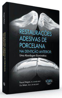 Livro Restaurações Adesivas De Porcelana Na Dentição Anterior