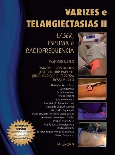 Varizes E Telangiectasias IiLivroLaser, Espuma E Radiofrequencia