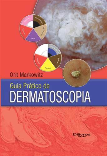 Guia Pratico De Dermatoscopia