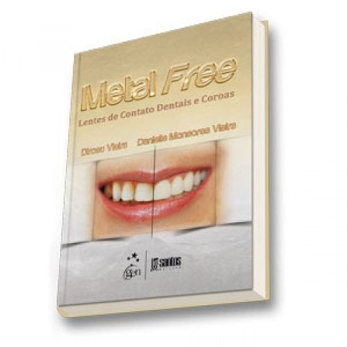 Livro Metal Free Lentes De Contato Dentais E Coroas