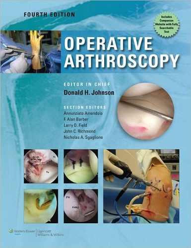 Livro Operative Arthroscopy