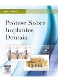 Livro Prótese Sobre Implantes Dentais 2ª Edição - Carl Misch