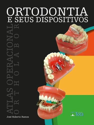 Livro Ortodontia E Seus Dispositivos Atlas Operacional Ortholabor
