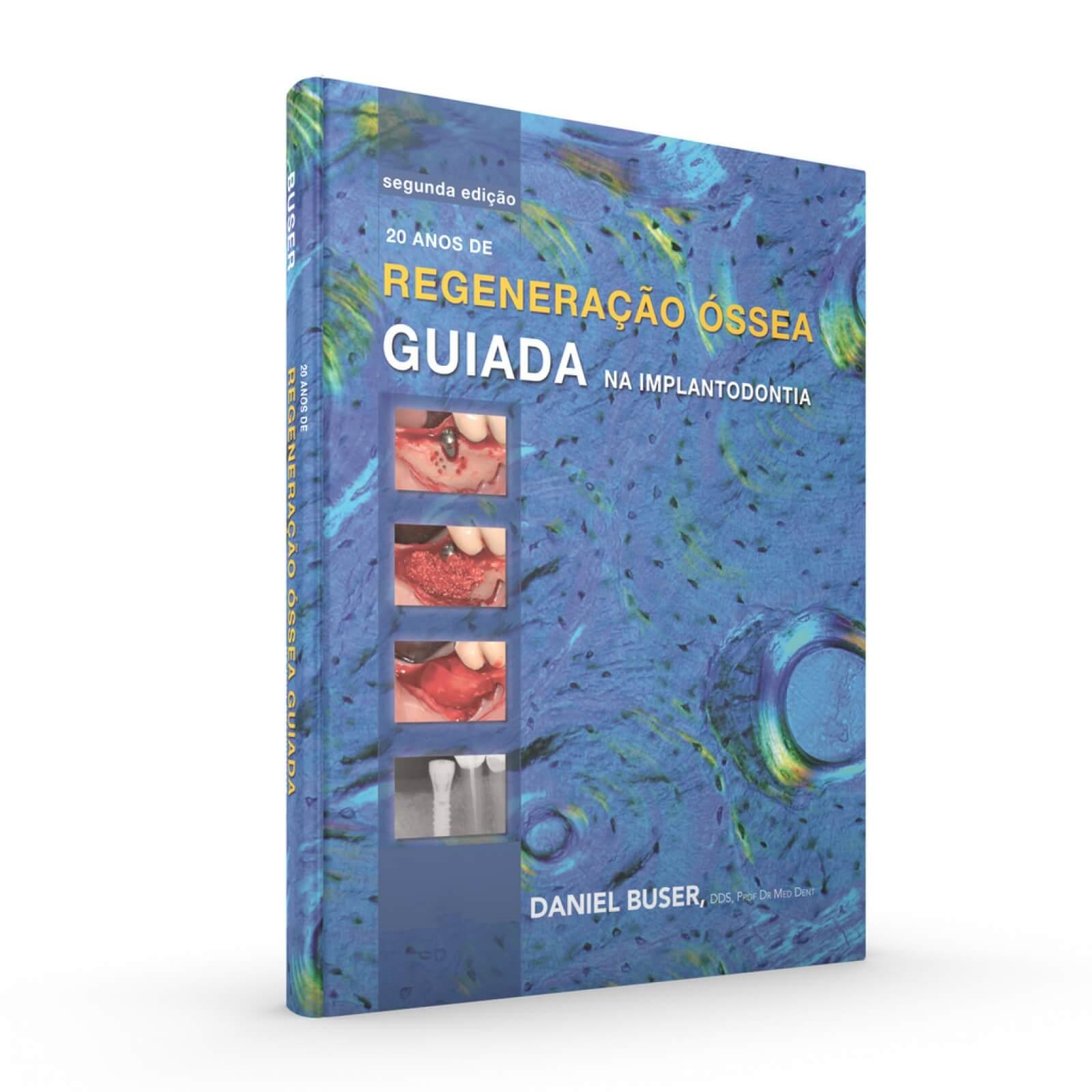 20 Anos De Regeneraçao Óssea Guiada Na Implantodontia