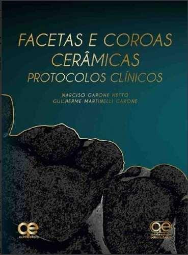 Facetas E Coroas Cerâmicas Protocolos Clínicos