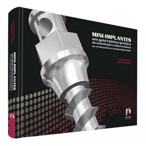 Livro Mini-Implantes - Um Guia Teórico-Prático De Instalação E Bi