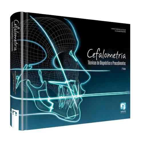 Cefalometria: Técnicas E Diagnóstico E Procedimentos