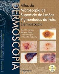 Atlas De Microscopia De Superfície De Lesões Pigmentadas Da