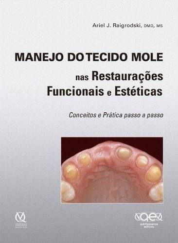 Livro Manejo Do Tecido Mole Nas Restauraçoes Funcionais E Estética