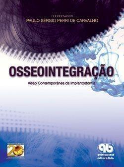 Livro Osseointegração - Visão Contemporânea Da Implantodontia