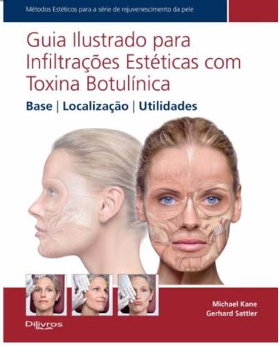 Guia Ilustr.p/ Infiltr. Estéticas C Toxina Botulínica