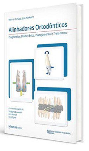Livro Alinhadores Ortodônticos - Diagnóstico, Biomecânica, Planejamento e Tratamento