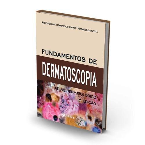 Livro Fundamentos De Dermatoscopia - Ramos E Silva