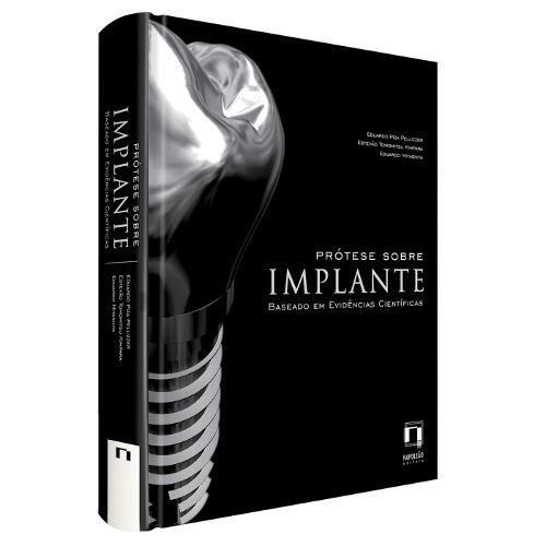 Prótese Sobre Implante: Baseado Em Evidências Científica