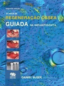 Livro 20 Anos De Regeneraçao Óssea Guiada Na Implantodontia