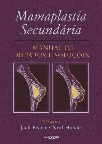 Mamoplastia SecundáriaLivroManual De Reparos E Soluções