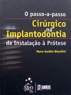 Livro O Passo A Passo Cirurgico Na Implantodontia