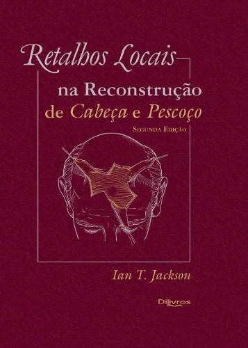 Retalhos Locais Na Reconstrução De Cabeça E Pescoço