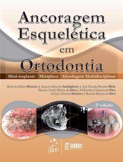 Livro Ancoragem Esquelética Em Ortodontia - Mini-implante