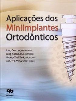 Aplicaçoes Dos Miniimplantes Ortodônticos