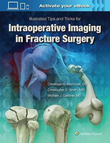 Livro Intraoperative Imaging In Orthopaedic Trauma: Illustrated Ti