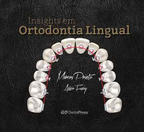 Insights Em Ortodontia Lingual Marcos Prieto