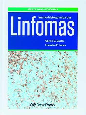 Livro Imuno-histoquímica Dos Linfomas