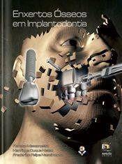 Livro Enxertos Ósseos Em Implantodontia