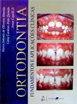 Livro Ortodontia: Fundamentos E Aplicações Clínicas