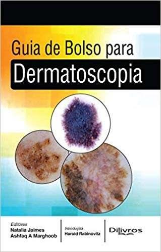 Guia De Bolso Para Dermatoscopia