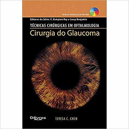 Cirurgia Do Glaucoma