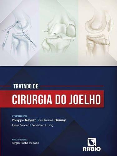 Livro Tratado De Cirurgia Do Joelho