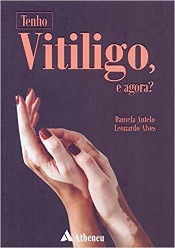 Tenho Vitiligo, E Agora?