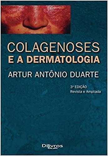 Colagenoses E A Dermatologia, 3ª 2019