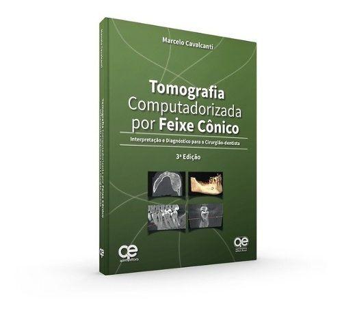 Livro Tomografia Computadorizada Por Feixe Cônico